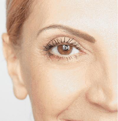 Facial Surgery of women