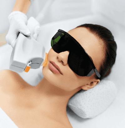 Laser treatment of women